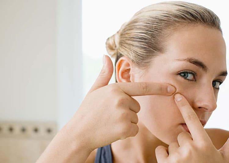 Най-добрите средства против пъпки. Ефикасни антибиотици и кремове против акне? лечение на акне с естествени препарати